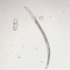 promip manejo integrado pragas controle biologico mip experience nematoides lesoes femea pratylenchus mobile